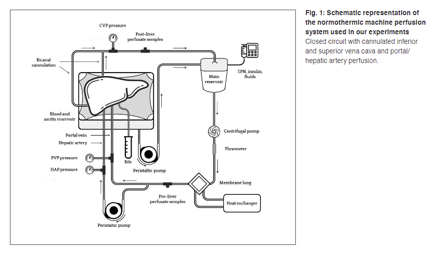 Schematic representation of the normothermic machine perfusion system used in our experiments